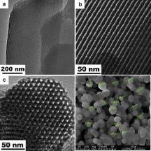 TEM & SEM Images - Mesoporous Particles